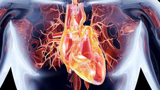 CT לב