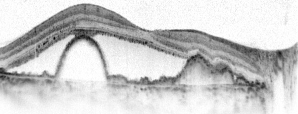 טומוגרפיה אופטית (OCT) של הרשתית המדגימה ניוון רטוב של הרשתית