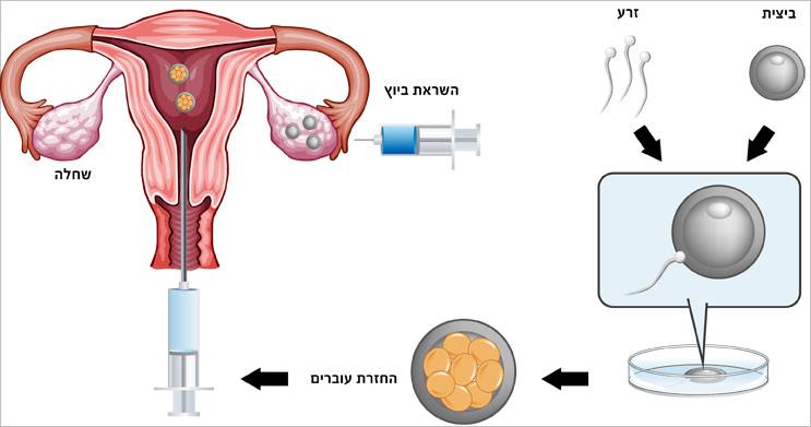 תרשים להמחשת תהליך הפריה חוץ גופית IVF