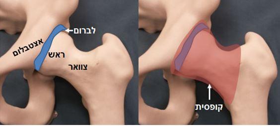 מפרק ירך